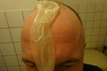 Kapotje op het hoofd
